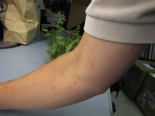 Mosquito_bites